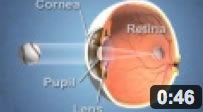 How the Eye Sees Cataract Forms