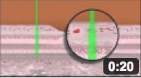 Laser for Macular Edema